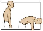 postural-kyphosis