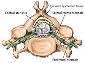 Stenosis