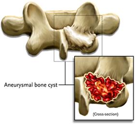 aneurysmal bone cyst
