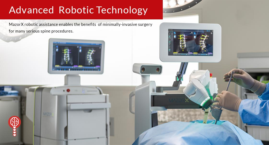 MazorX advanced robotic technology - MazorX robotic assistance enables the benefits of minimally invasive surgery for many serious spine procedures.